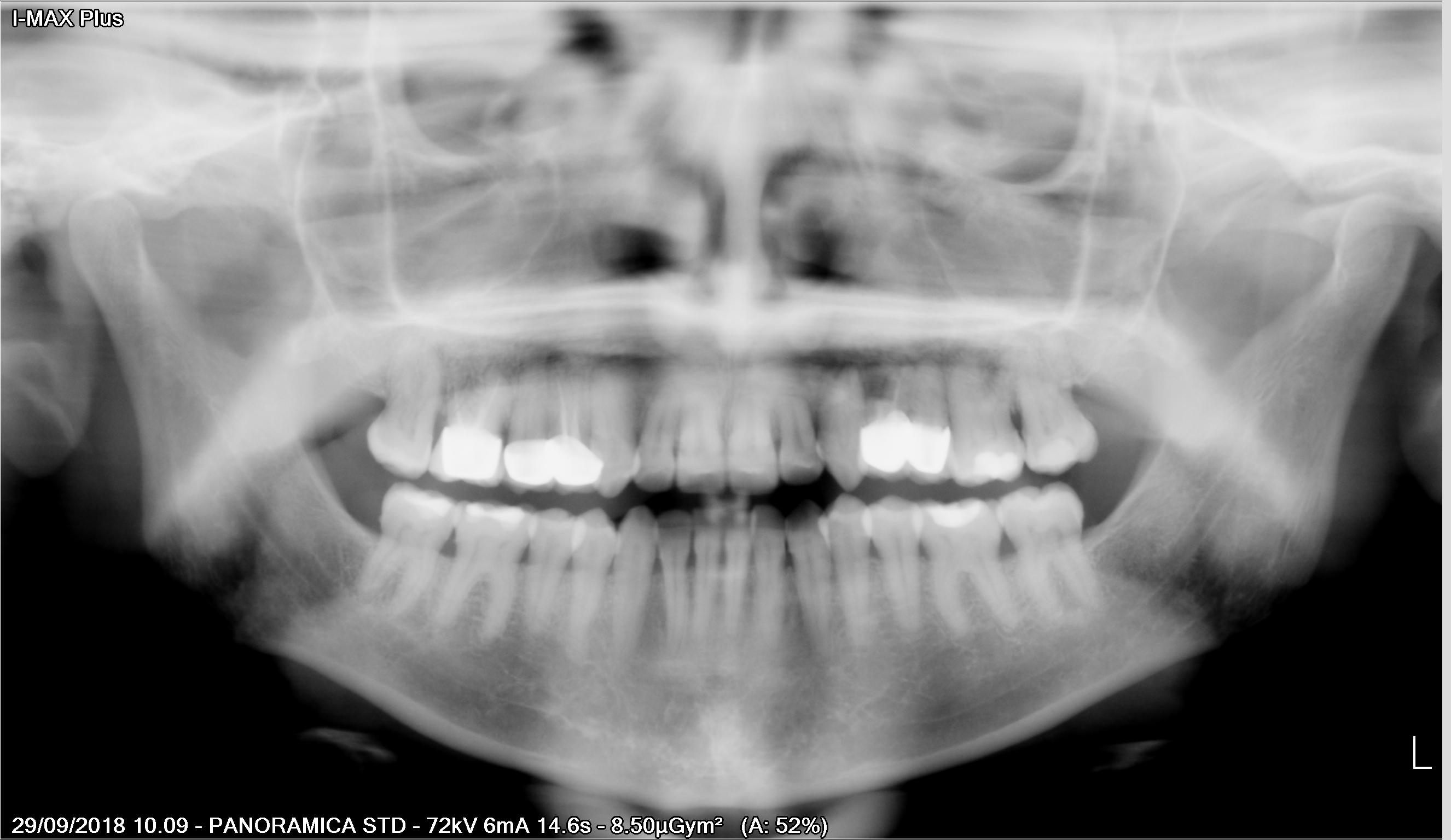 E' possibile rimuovere le capsule dentali senza danneggiarle?