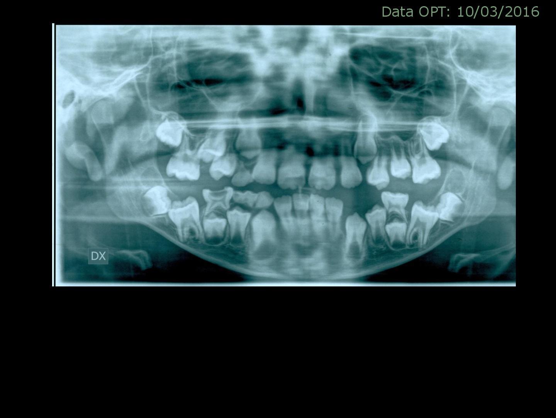 Mio figlio che ha 10 anni e mezzo, ha i molari sesti inclusi inclinati