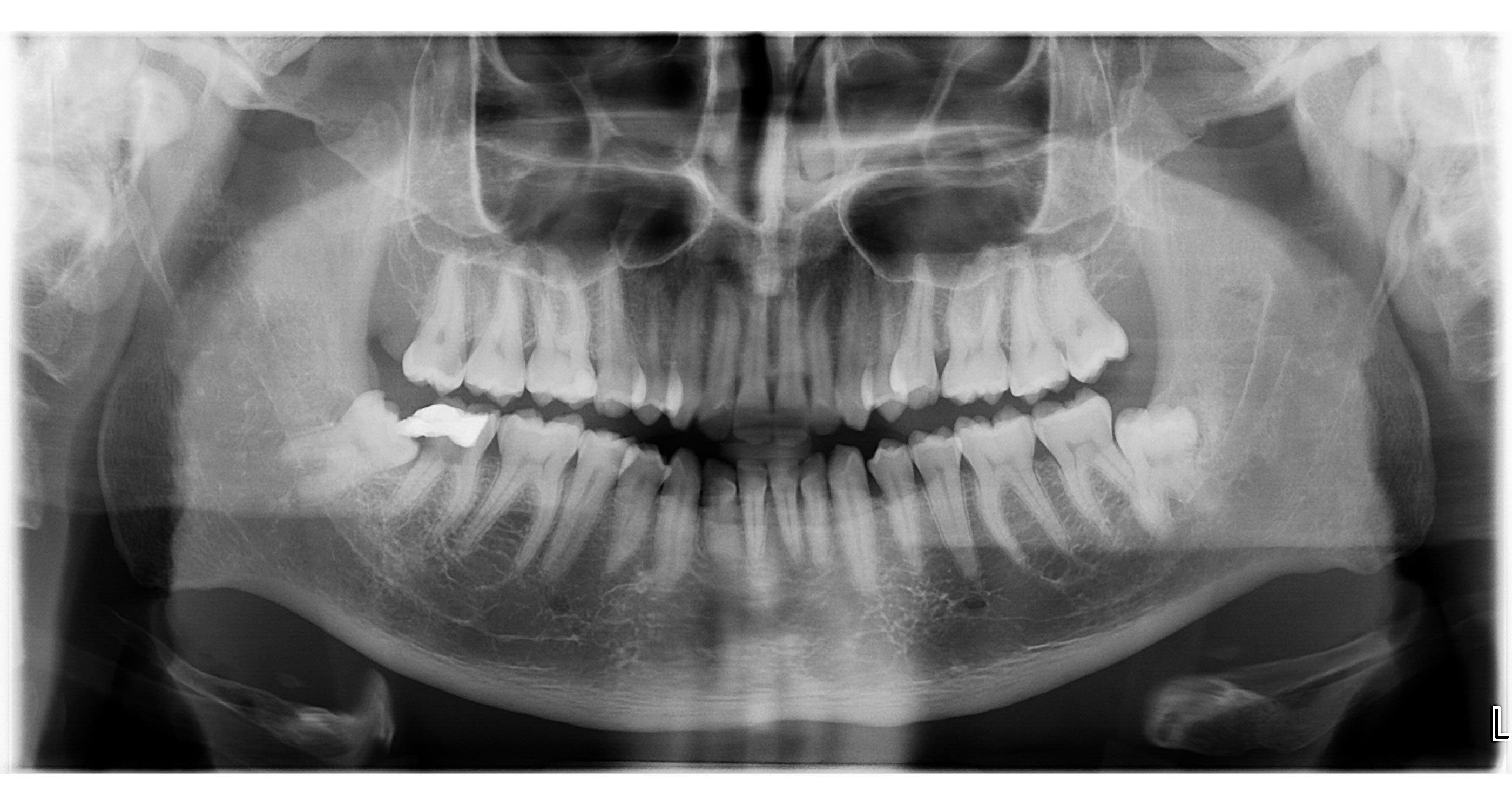 Devo estrarre anche l'altro dente?