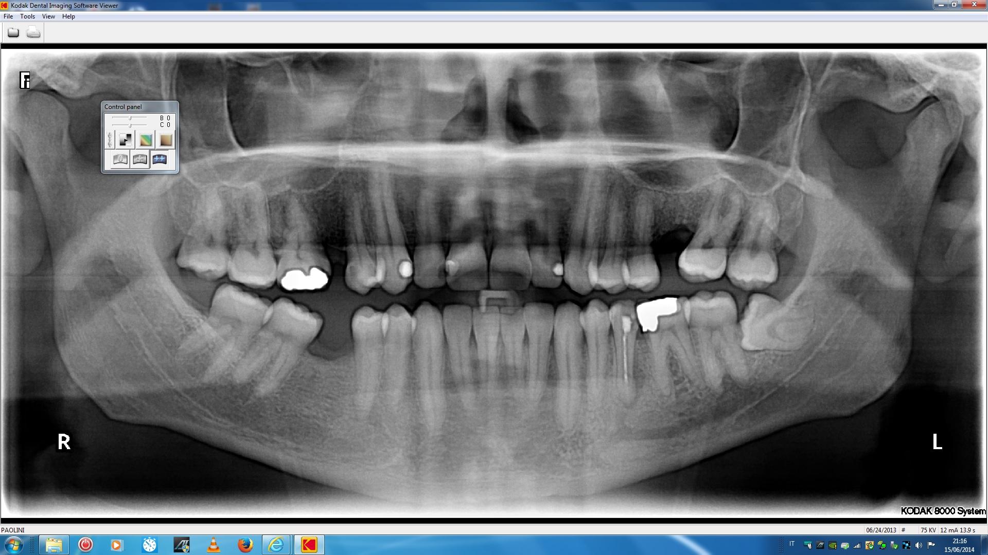 C'e il pericolo che si siano danneggiati i denti vicini?