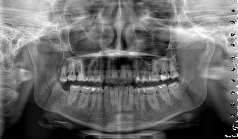 Circa due settimane fa mi sono svegliata con un dolore al dente 16 devitalizzato da circa 12 anni.