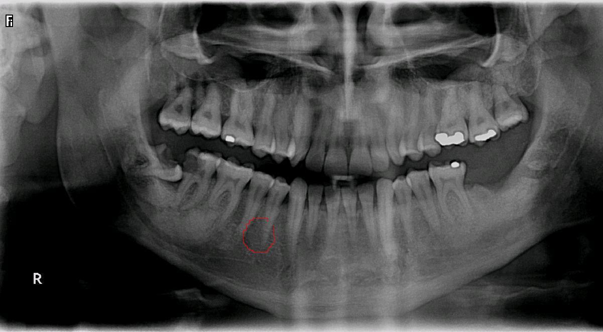 Seguito domanda del 31/10/2008: Estrazione denti e impianti post estrattivi