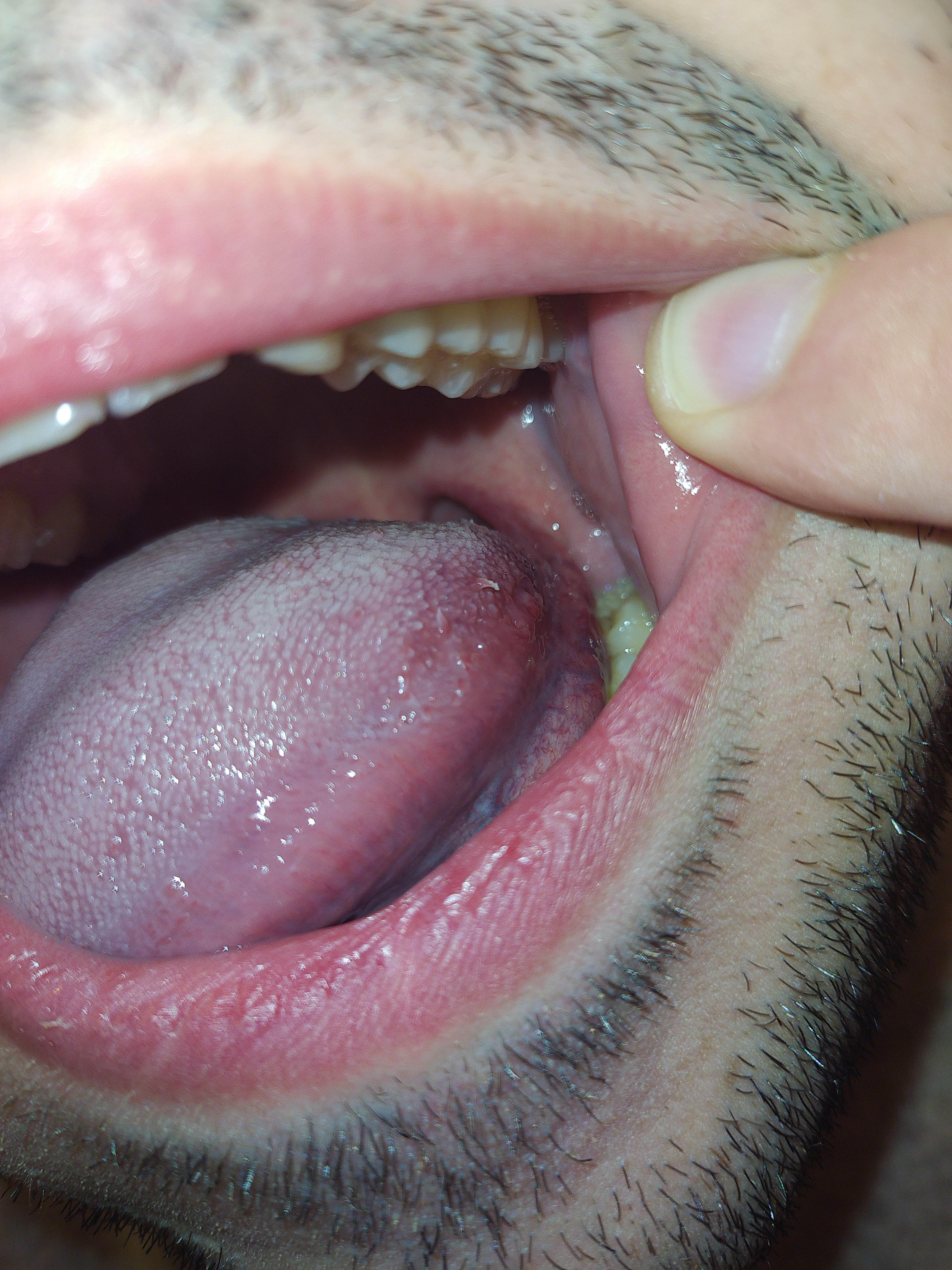 Soffro di stomatiti e ho spesso afte sul palato molle