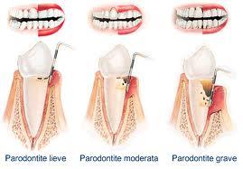 parodontite-1.jpg