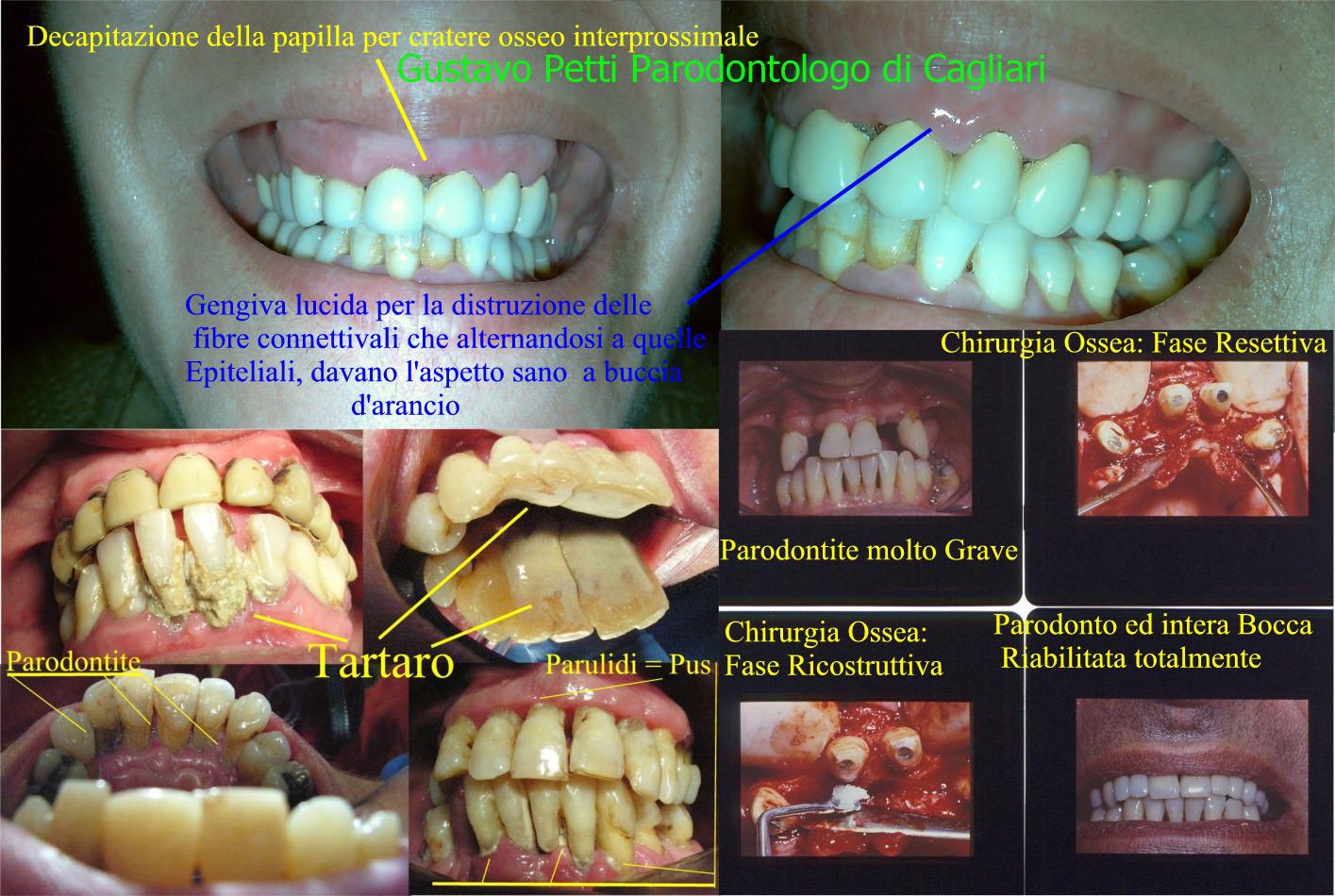 parodontiti-riab-da-g.petti-cagliari-288.jpg