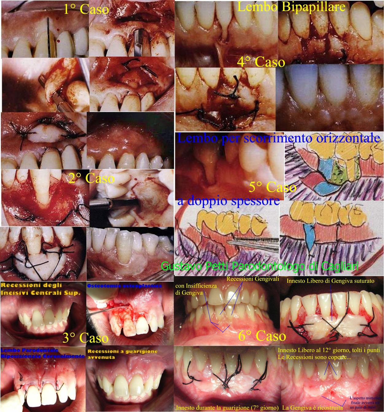 Dr. Gustavo Petti Parodontologo di Cagliari.Recessioni Gengivali e Varie Terapie Di Chirurgia Parodontale Muco Gengivale