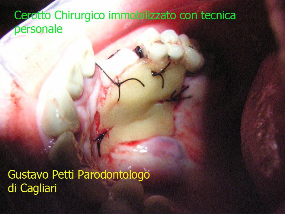 petti-parodontologo-di-cagliari-31.jpg