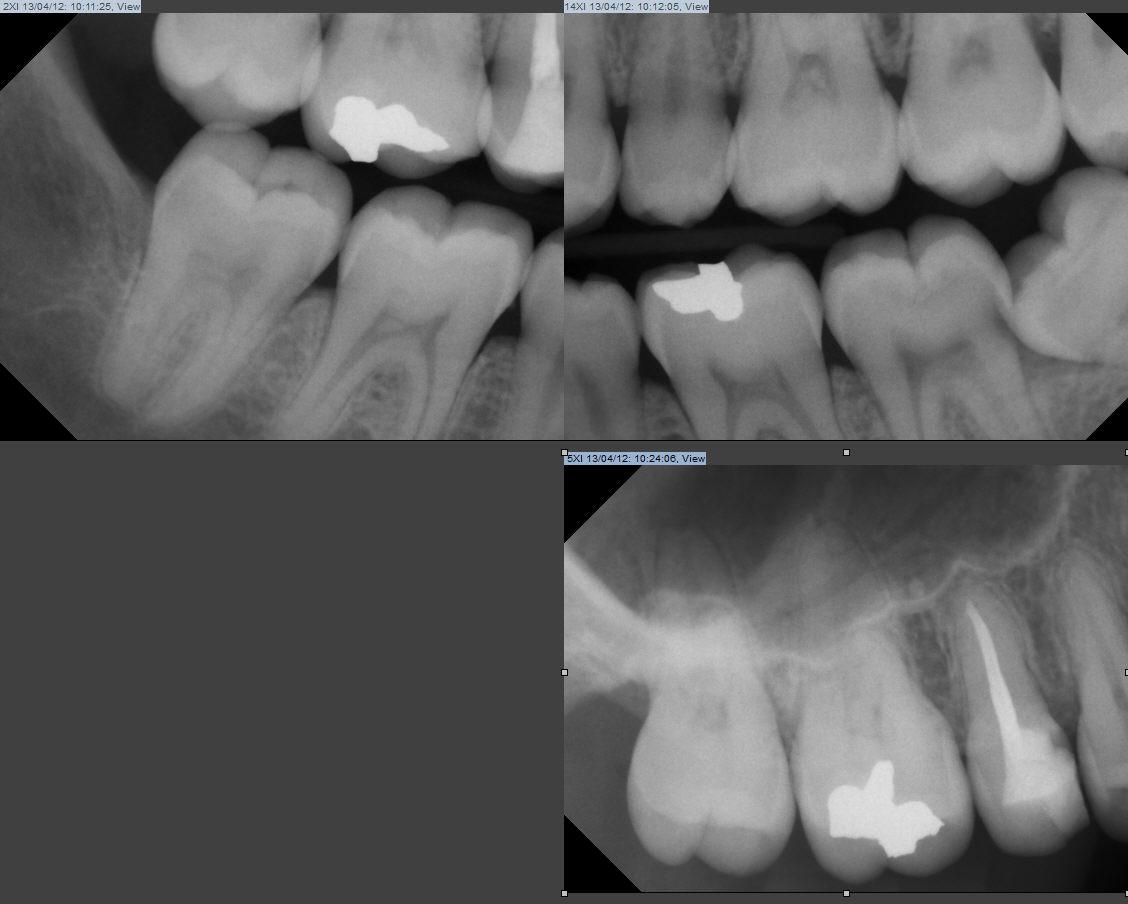 Un dentista locale mi ha detto che dovrei levare il dente del giudizio...