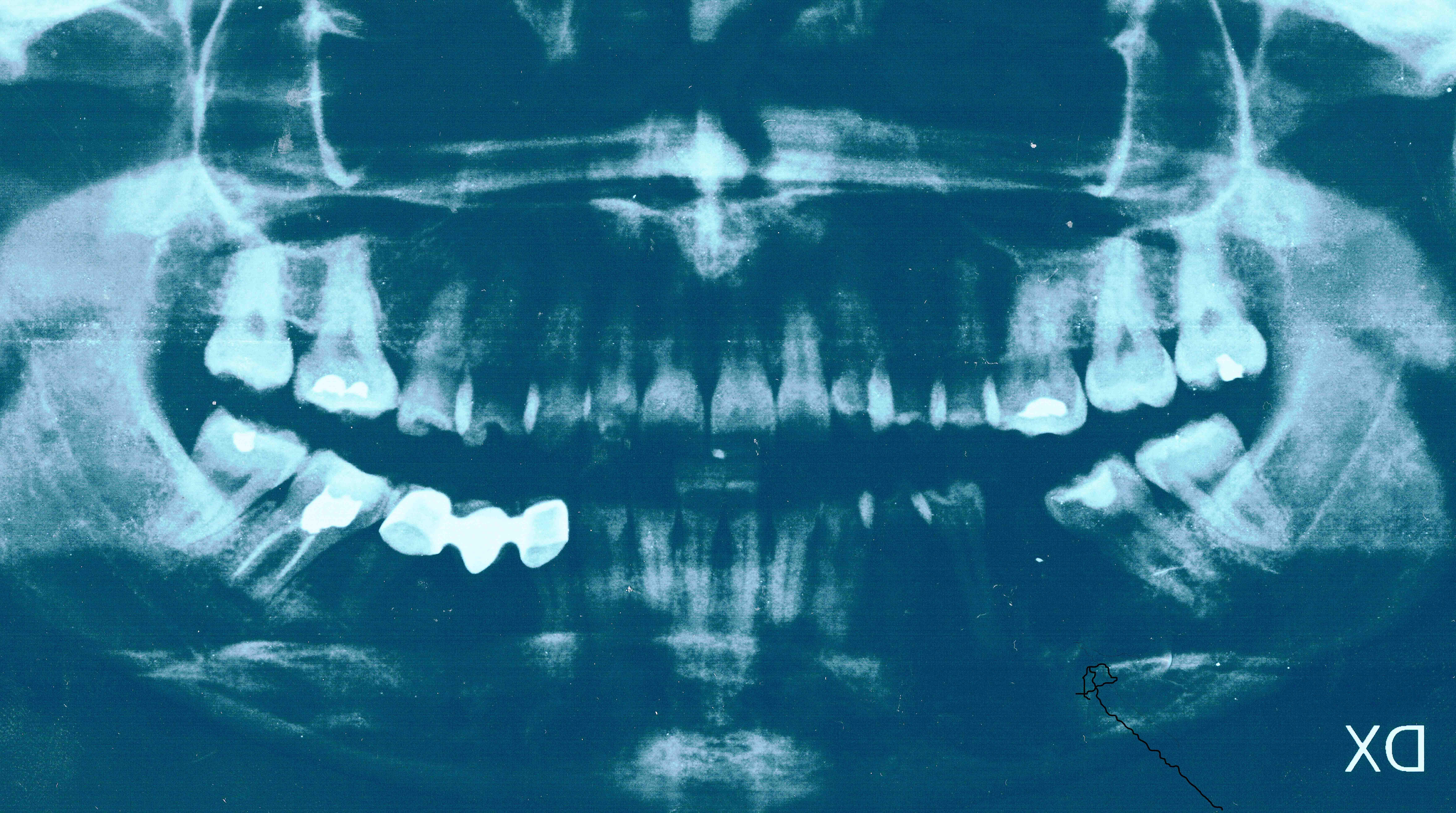 Seguito alla domanda: Anni fa mi è stato estratto un molare in quanto si evidenziava una grossa ciste