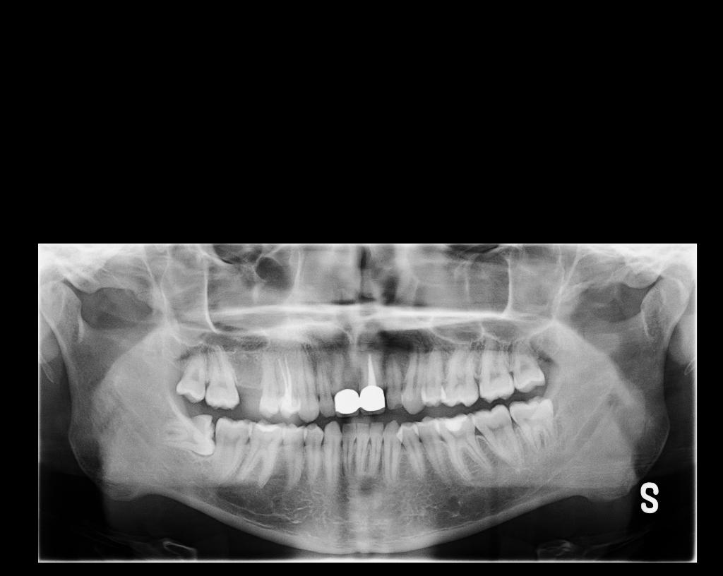 Ho avuto un brutto ascesso dentale