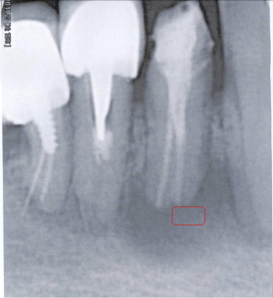 Ho problemi da tempo su 2 premolari e molare inf dx