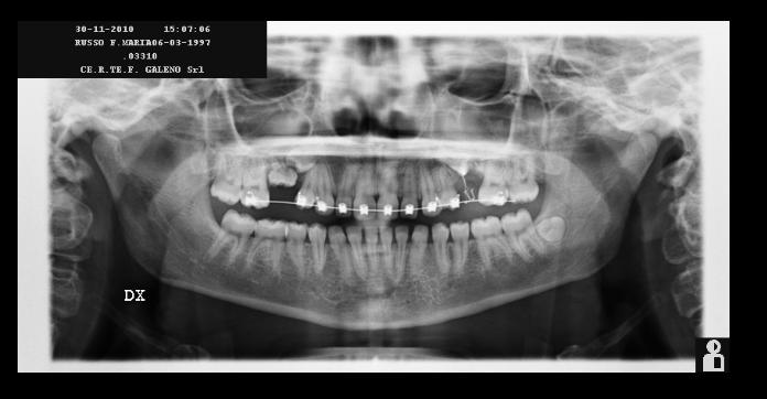 Sono stato da due dentisti diversi con due soluzioni diverse al problema
