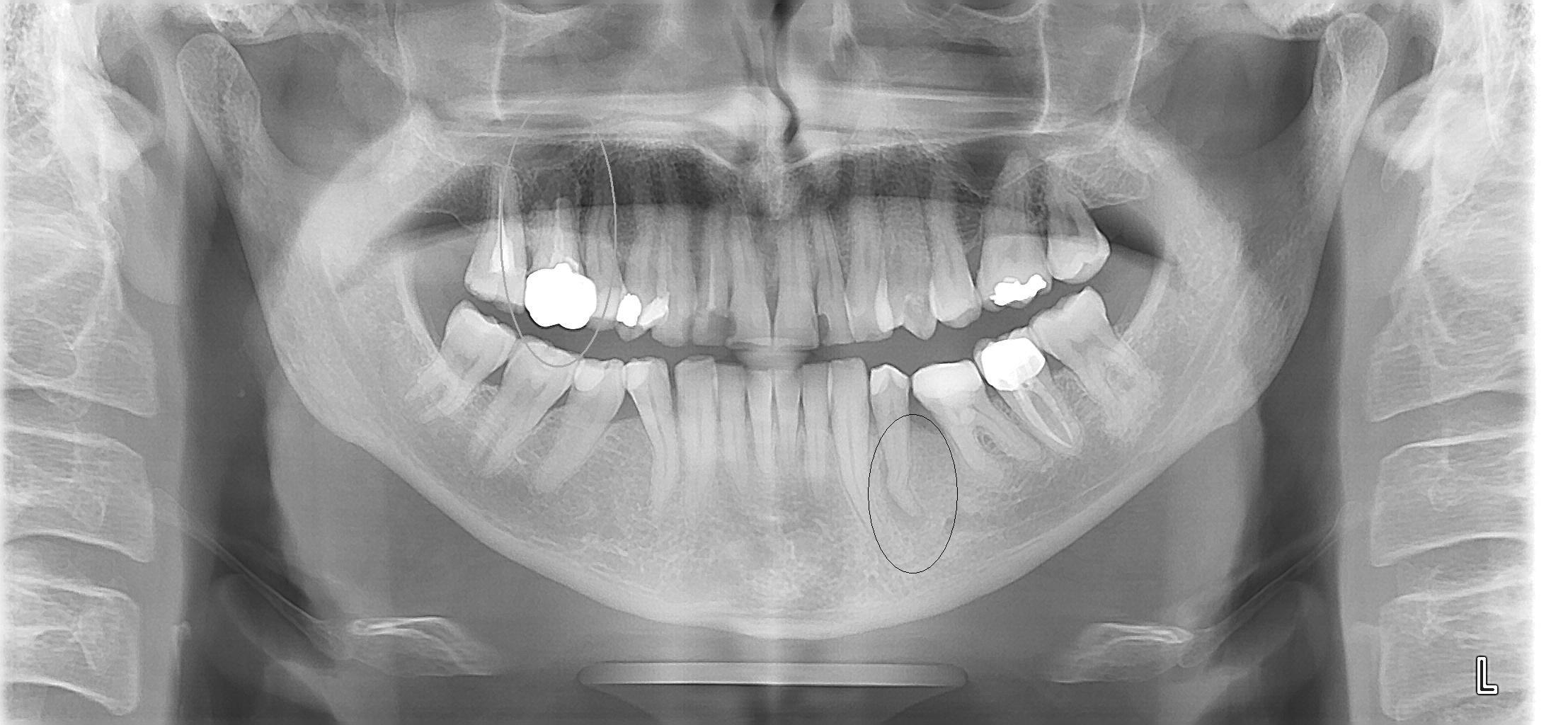 Mi hanno cosigliato la devitalizzazione con apicectomia del dente per un granuloma.