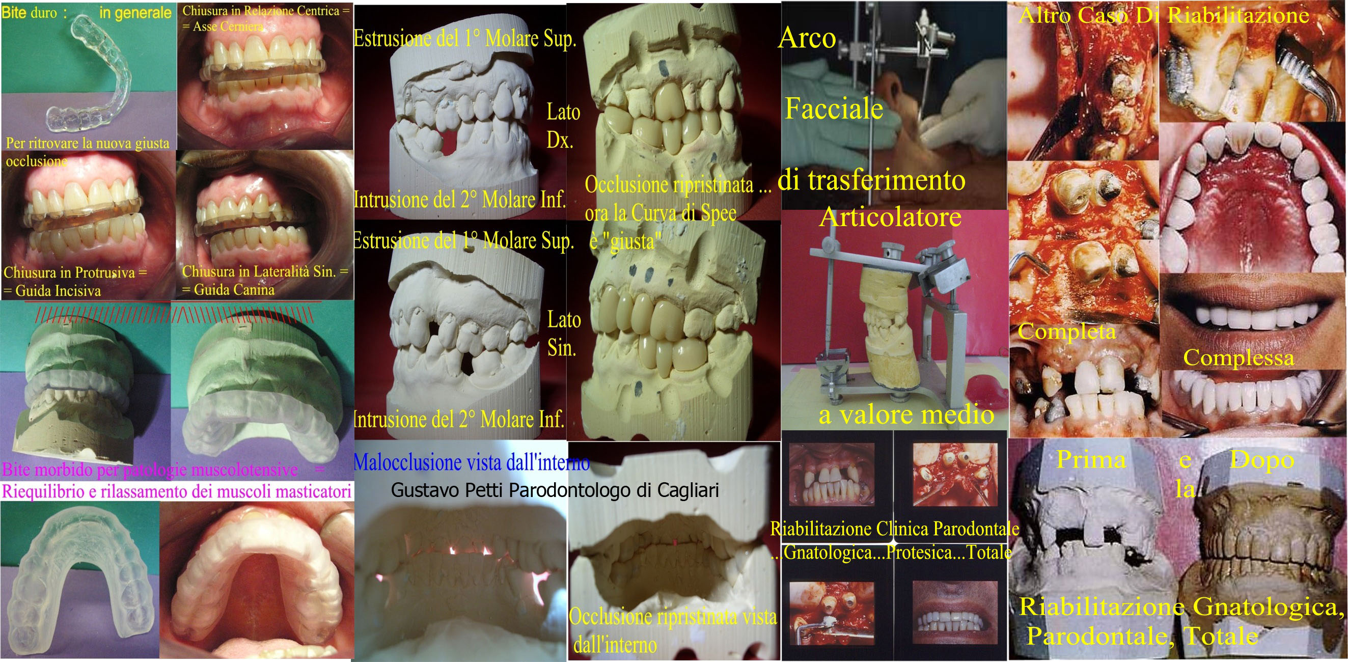 riabilitazione-gnatologica-e-parodontale--241.jpg