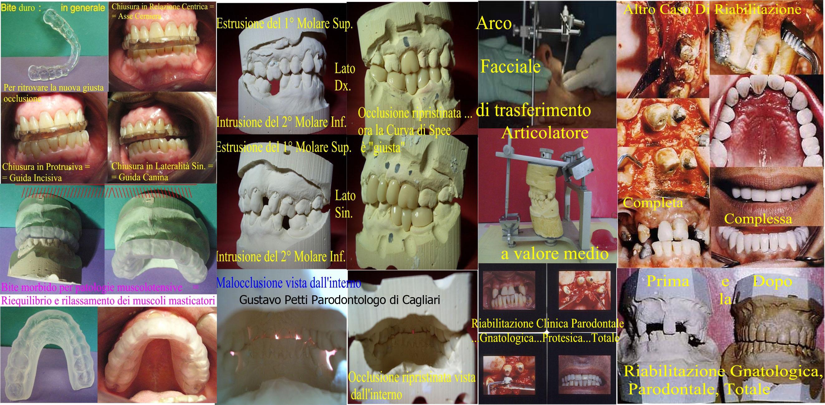 riabilitazione-gnatologica-e-parodontale--266.jpg