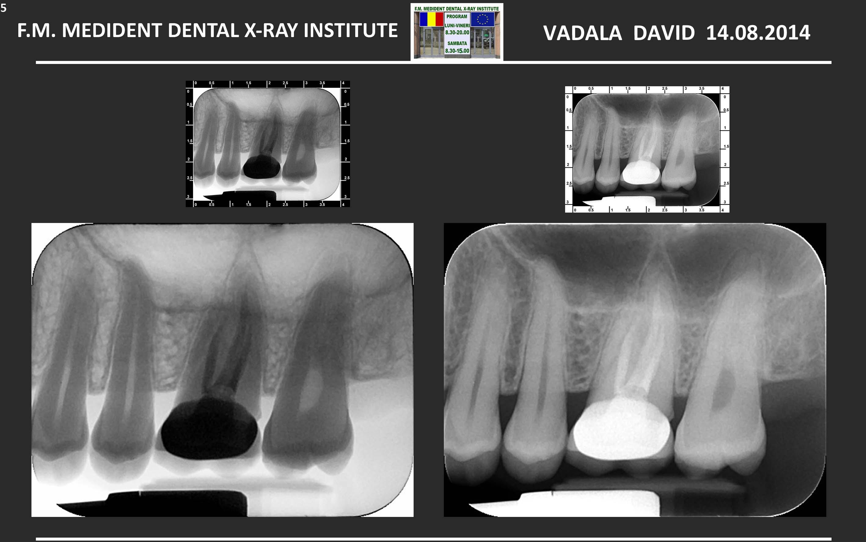 Ho eseguito un trattamento canalare al molare