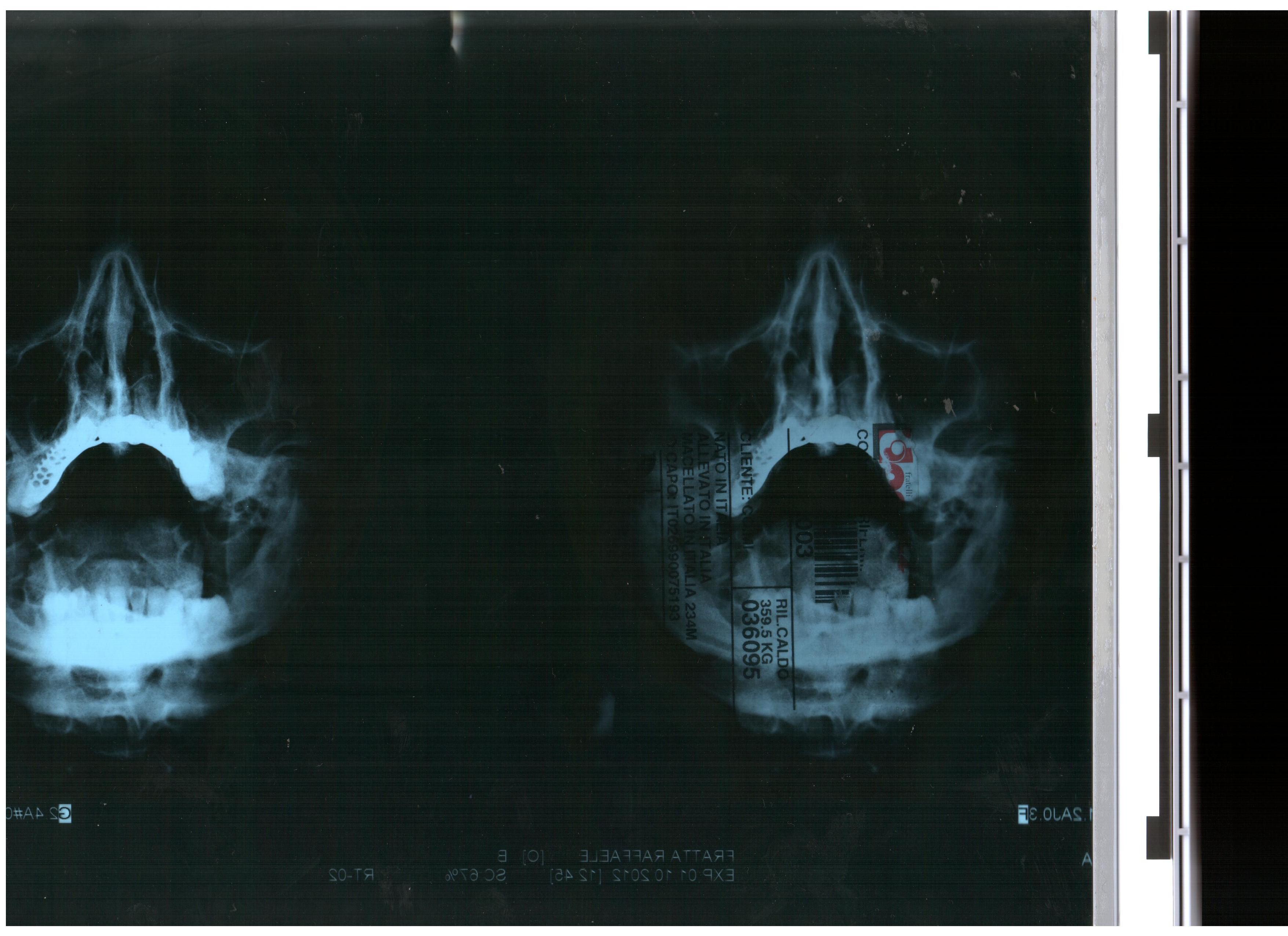 Da oltre 15 giorni ho dolore alla mascella dx