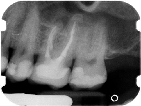 3 anni fa ho devitalizzato e incapsulato 2 molari