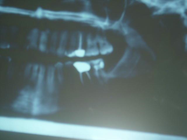 Seguito alla domanda: Curare o togliere il dente?