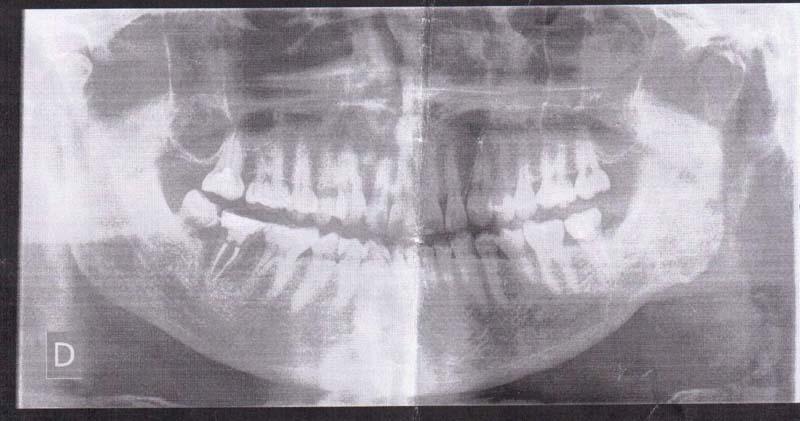 Lo scorso dicembre mi si è rotta la ricostruzione/corona del penultimo molare
