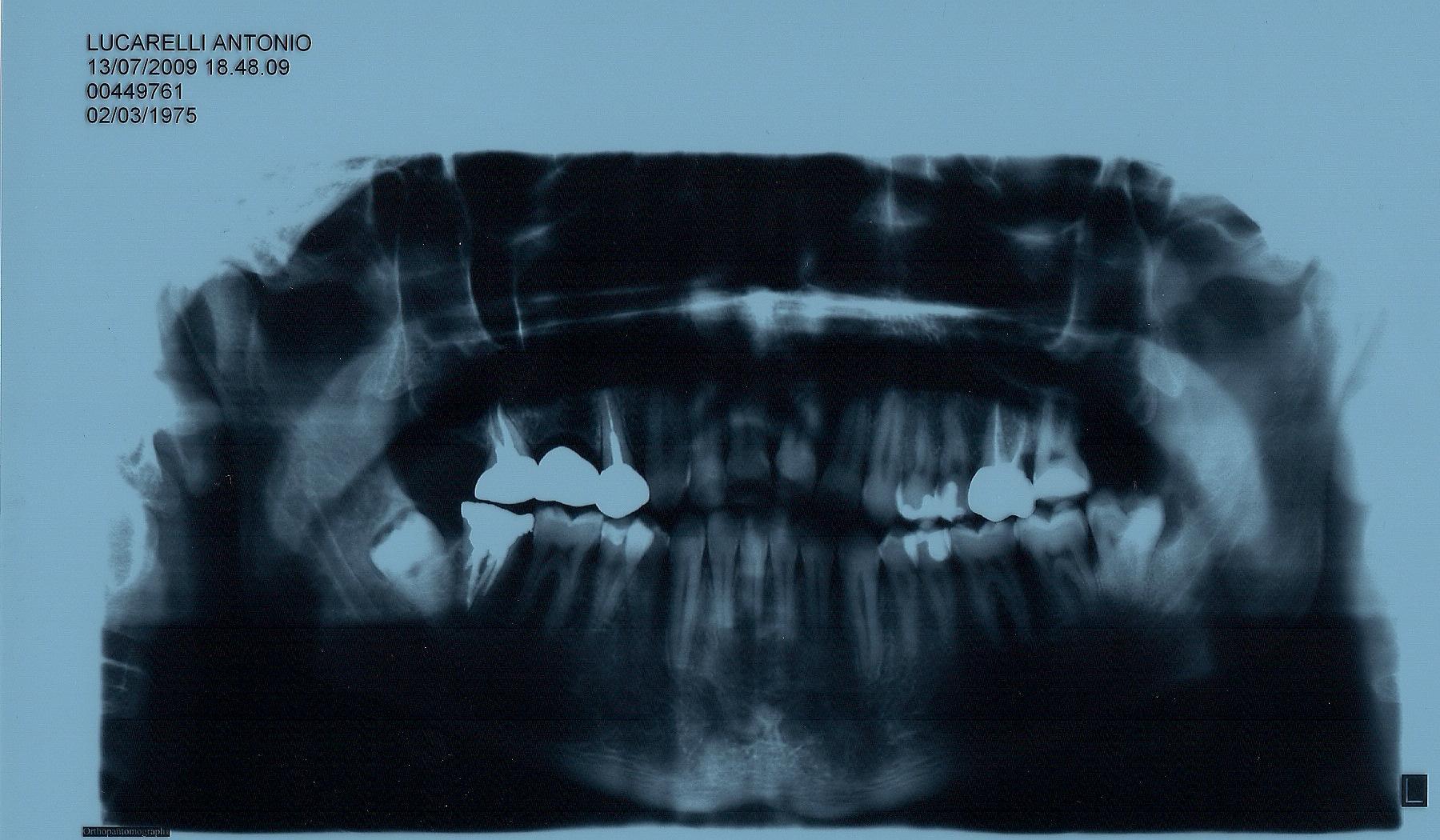 Ho effettuato un'immersione e appena ho toccato una certa profondida circa 10 mt,il molare superiore ha cominciato a farmi molto male
