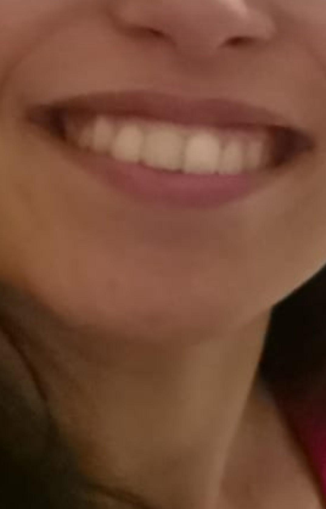 Ultimamente alcuni dei miei denti sono diventati più giallastri rispetto ad altri