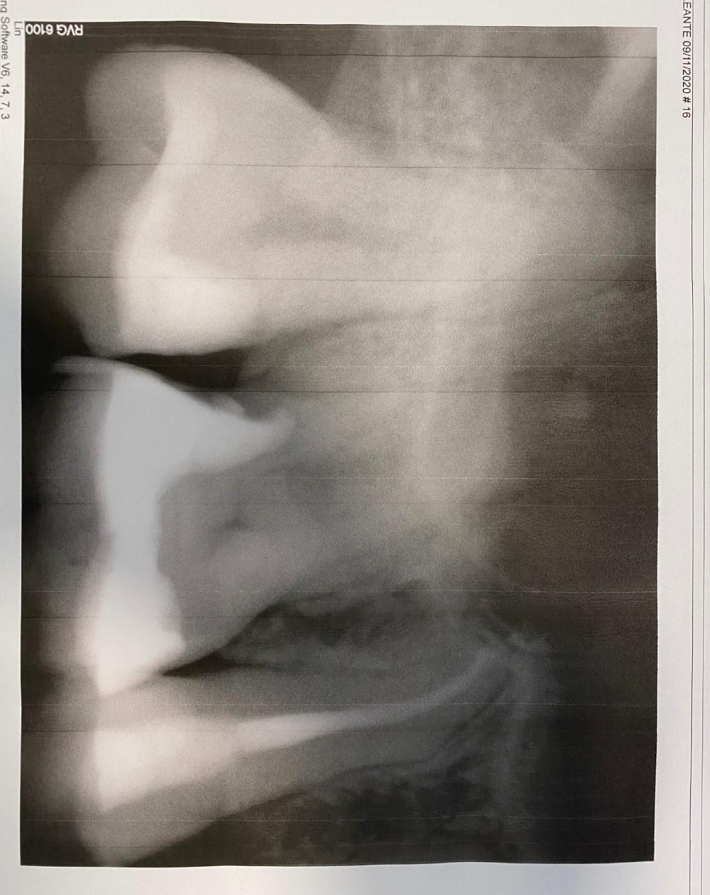 Ho dolore al dente devitalizzato