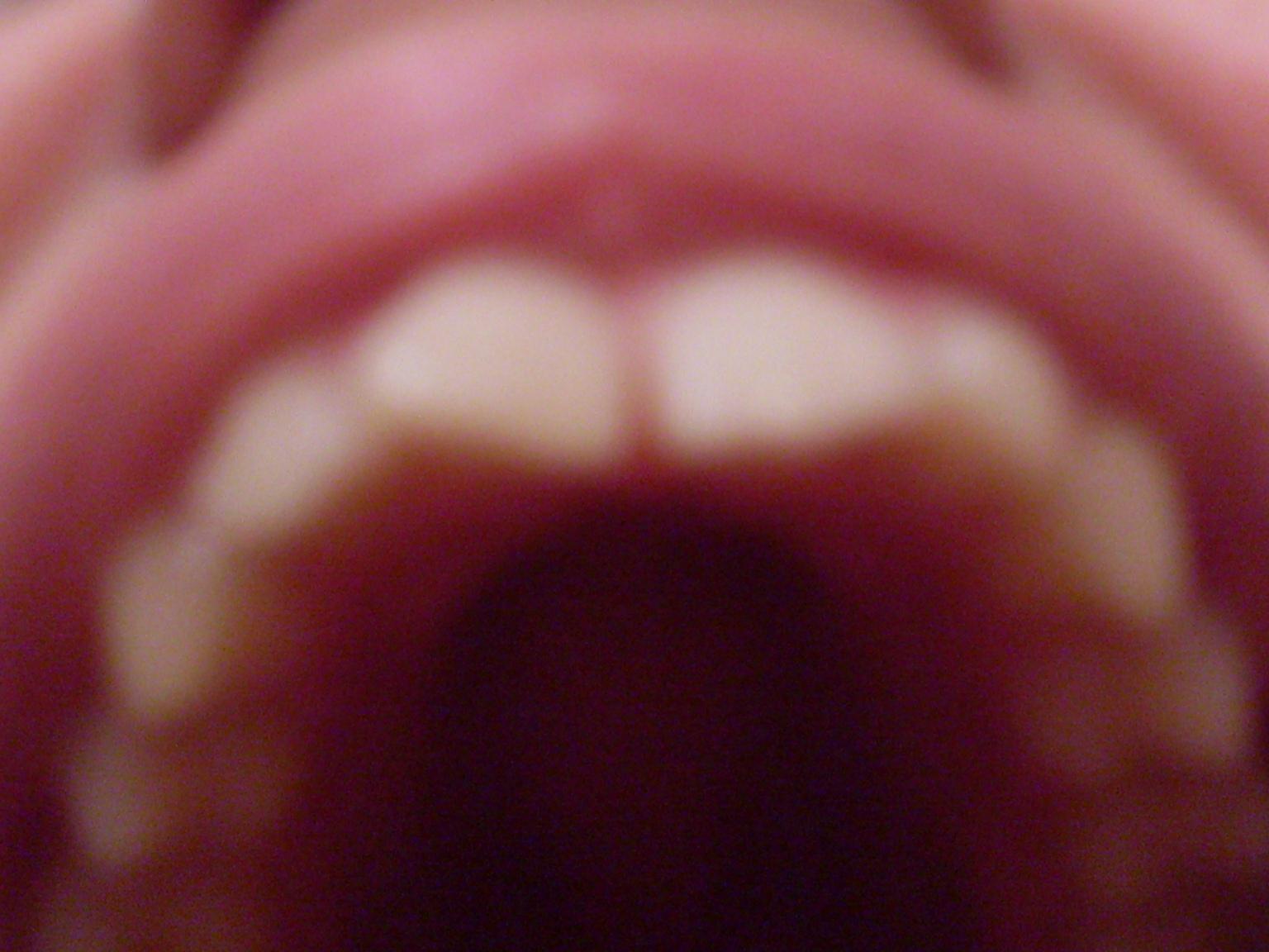 Spero possiate darmi un consiglio sulla miglior soluzione del mio problema dentale