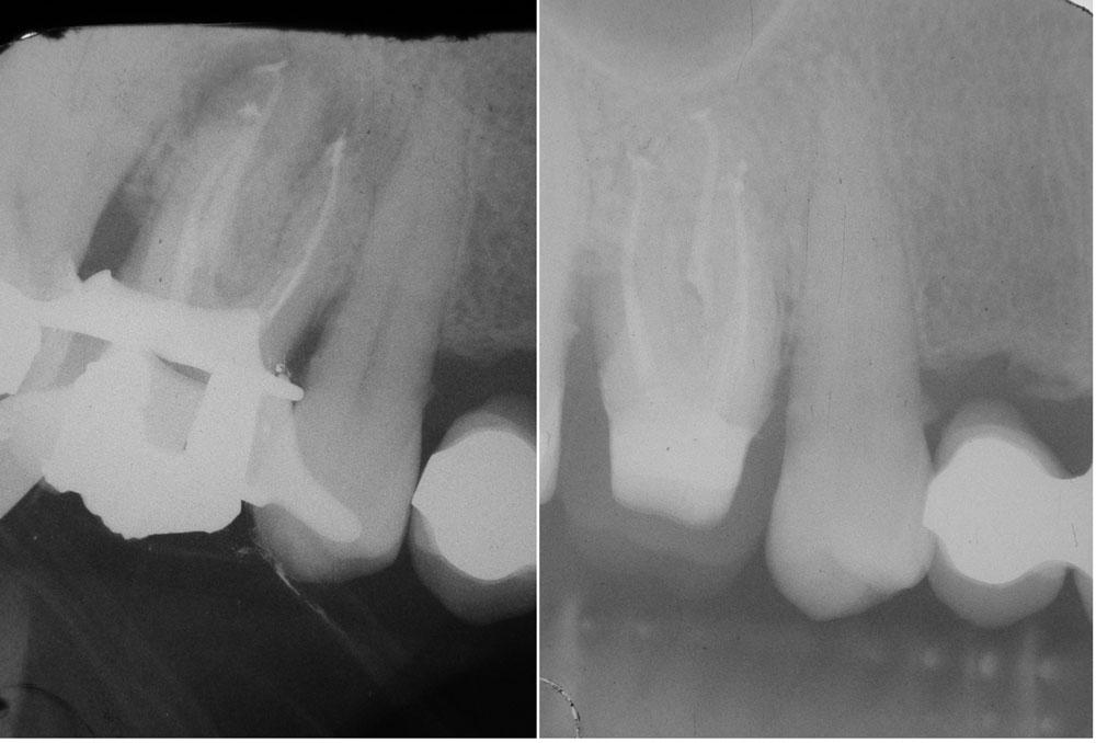 Nella prima molare superiore appena sigillato, ancora con la diga (si vede l'uncino). Nella seconda si vede la guarigione a pochi mesi di distanza
