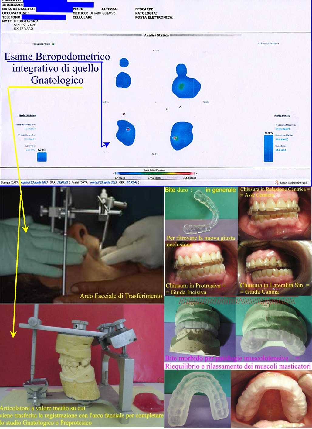 Poster dimostrativo di una analisi podometrica statica, di un arco facciale con articolatore a valore medio e di diversi tipi di bite in uno studio Gnatologico. Da casistrica del Dr. Gustavo Petti Gnatologo Parodontologo di Cagliari