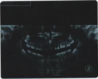Seguito domanda: Disodontiasi canino superiore sx.