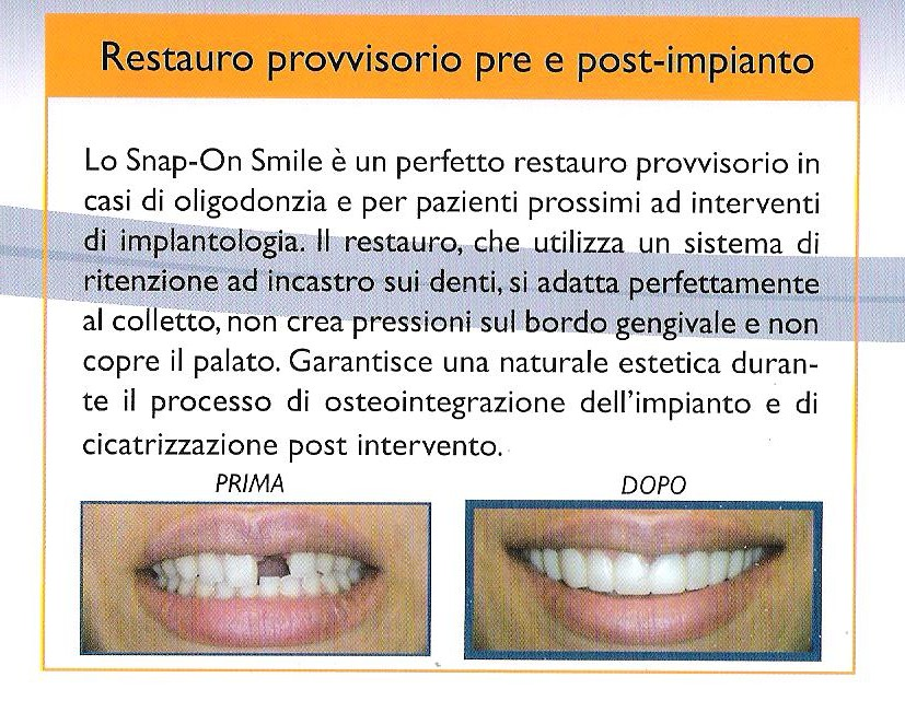 snap-on-smile-agenesie-001.jpg