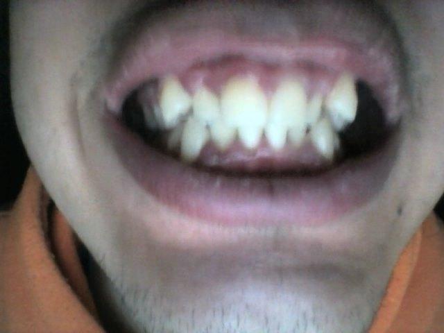 Ho il problema di avere i canini sporgenti rispetto al resto della dentatura