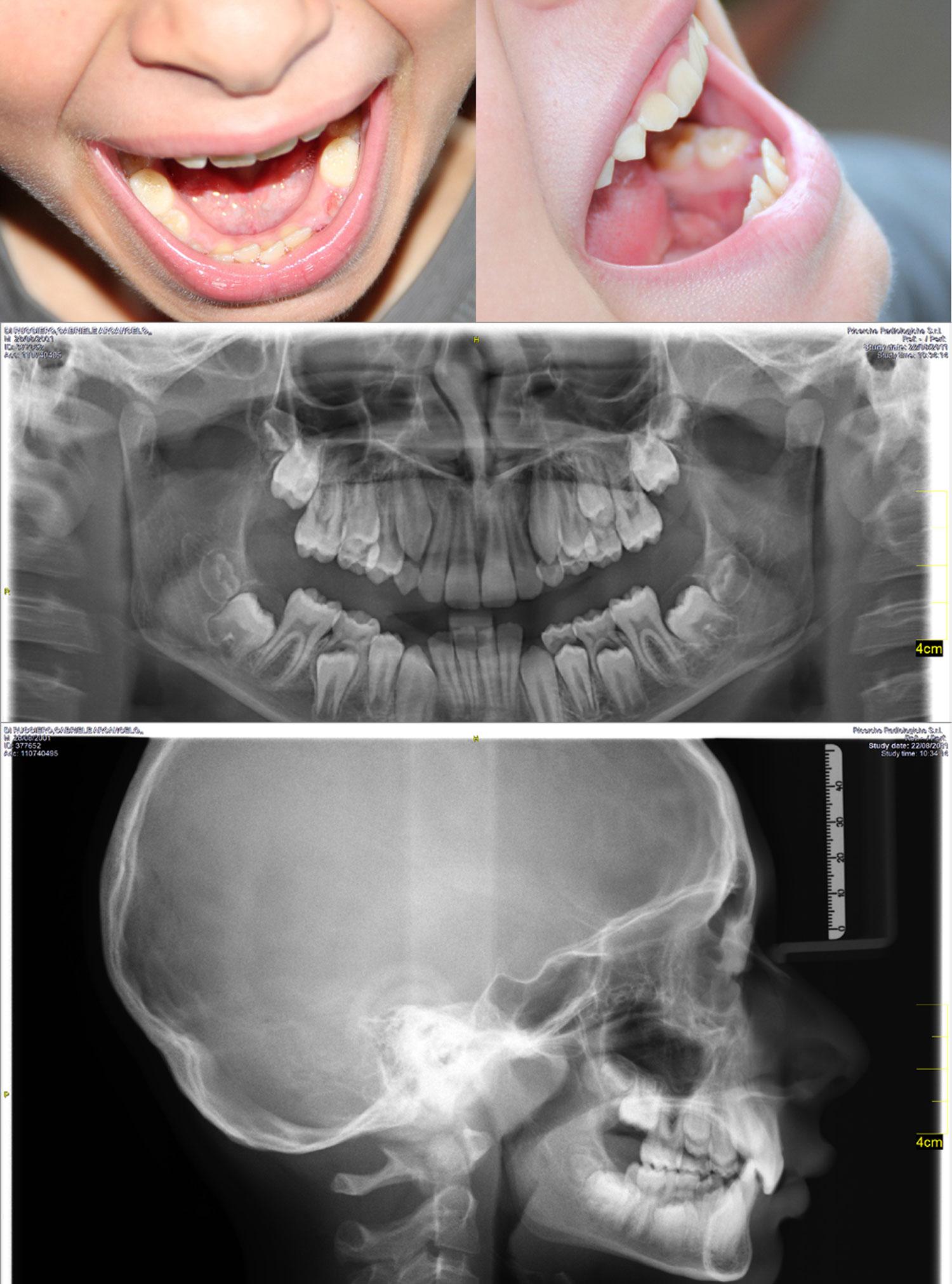 E' il caso o meno di intervenire con sussidi ortodontici?