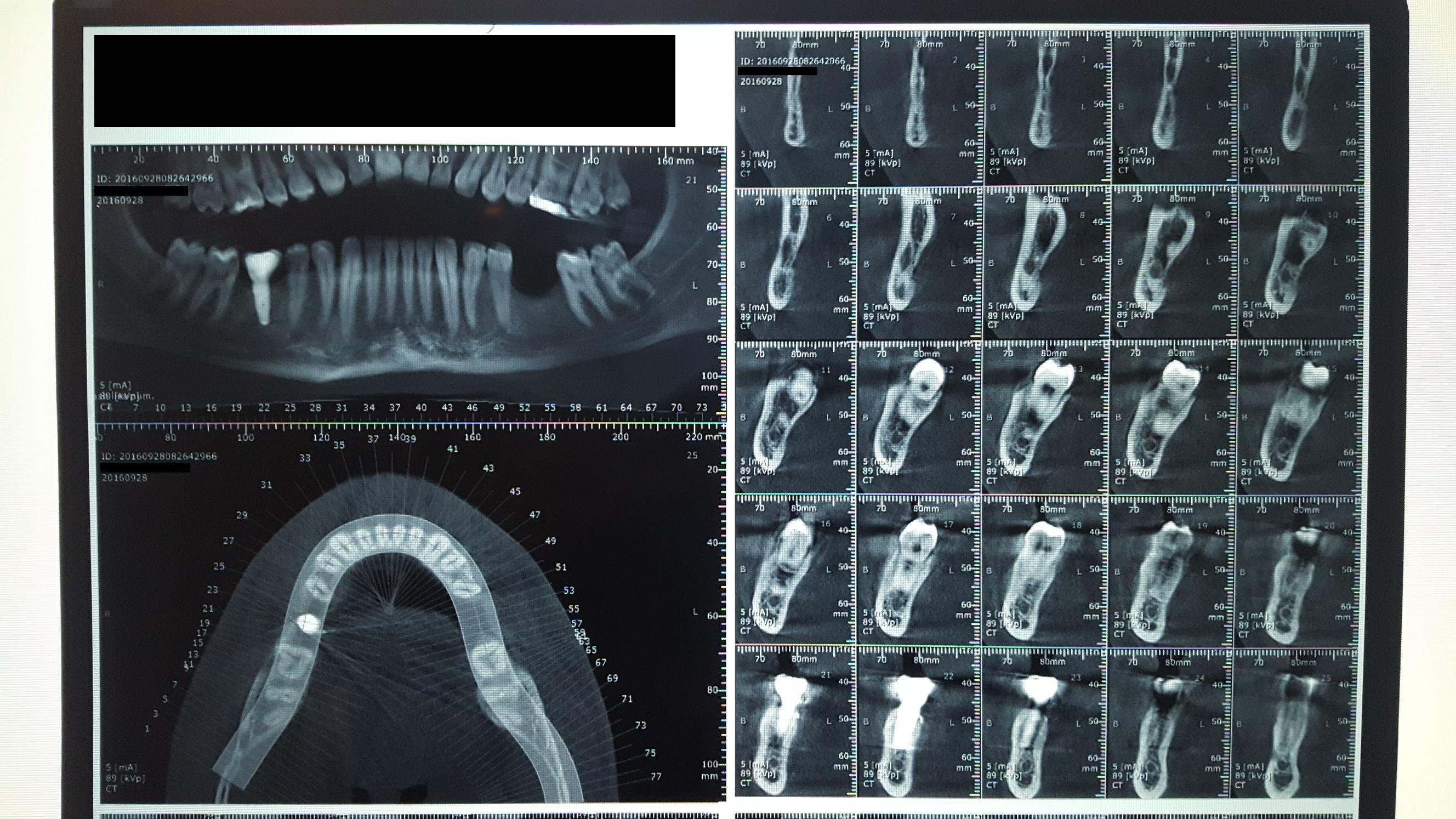Ho eseguito un innesto d'osso per poi inserire l'impianto stesso con vite di guarigione