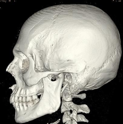 Secondo voi è davvero una soluzione valida l'artroscopia?