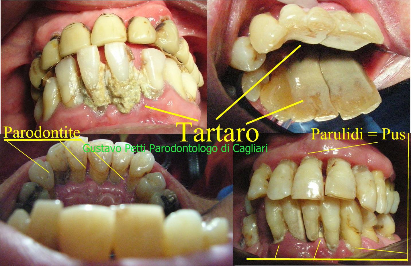 tartaro-in-parodontite-dr.g.petti-cagliari.jpg