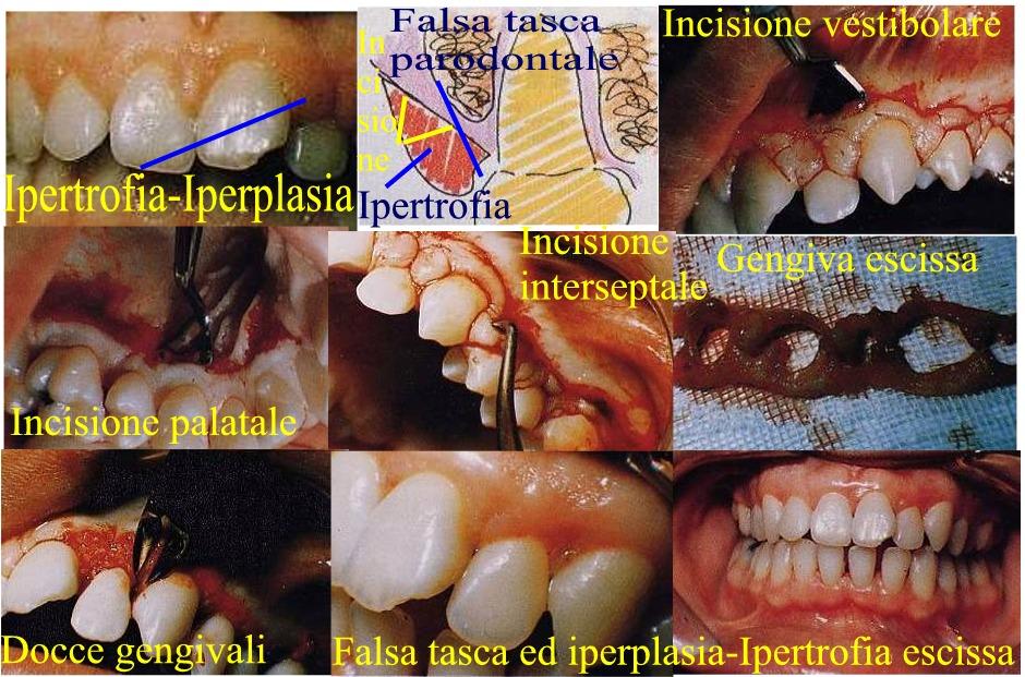 Ipertrofia iperplasia gengivale da difenilidantoina e sua terapia chirurgica parodontale mucogengivale con gengivectomia essendoci gengiva aderente sufficiente. Da Dr. Gustavo Petti Parodontologo di Cagliari