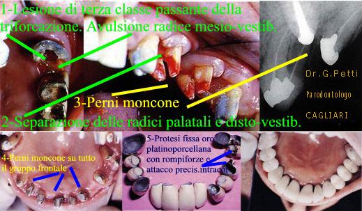 Dr. Gustavo Petti Parodontologo Gnatologo Protesista Ribilitativo Orale in Casi Complessi, di Cagliari. Rompiforze. Vedere Spiegazione nel Testo