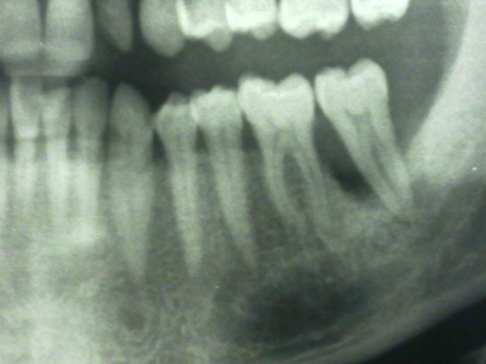 Da circa tre settimane accuso un pressante dolore in prossimità del terzo molare inf. sx.