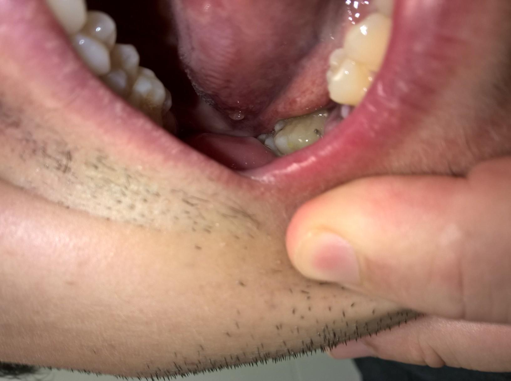 Formicolio e bruciore sulla lingua