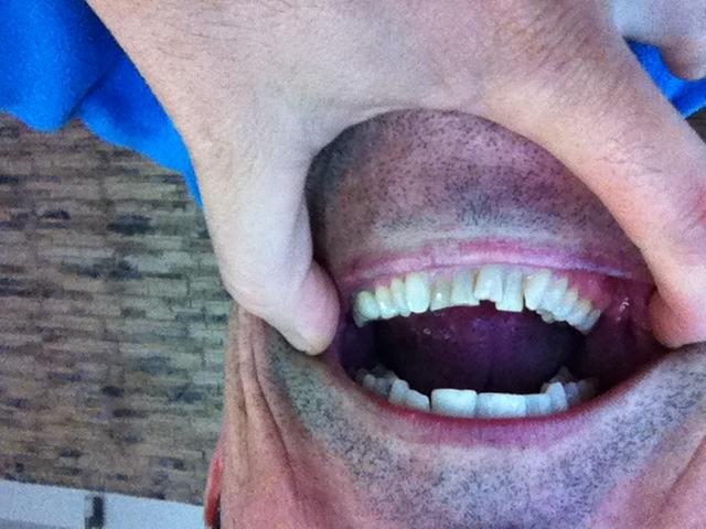 Ho forti problemi di tensioni, compressioni facciali, mandibolari, a tutti i muscoli masticatori