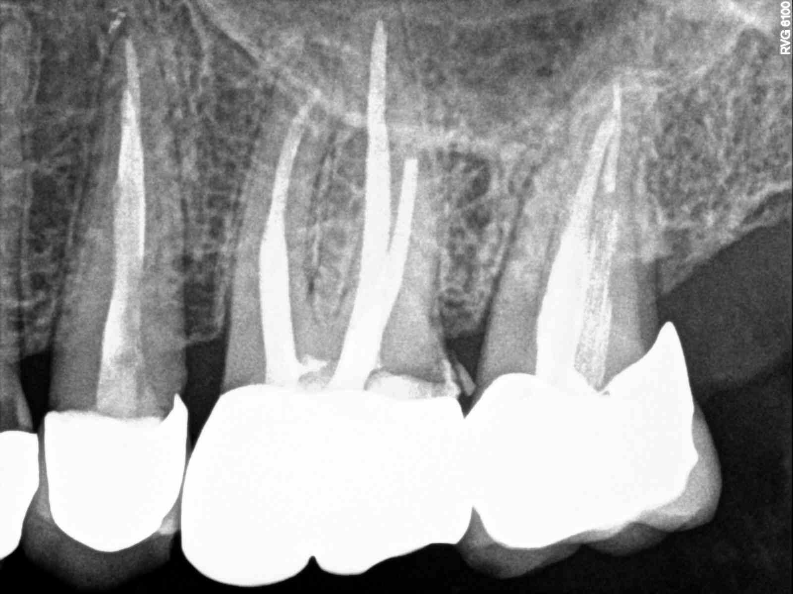 A seguito di rottura dente devitalizzato mi e' stata applicata una corona
