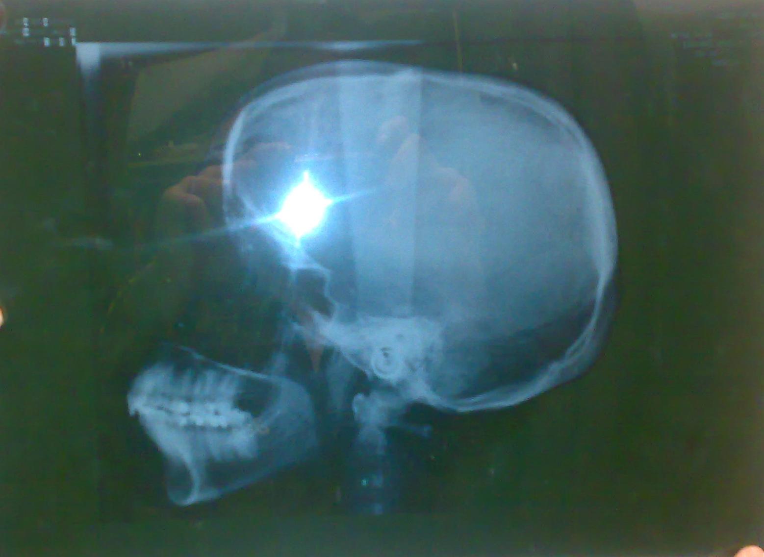SEGUITO ALLA DOMANDA: Ho 36 anni e sono una seconda classe scheletrica.