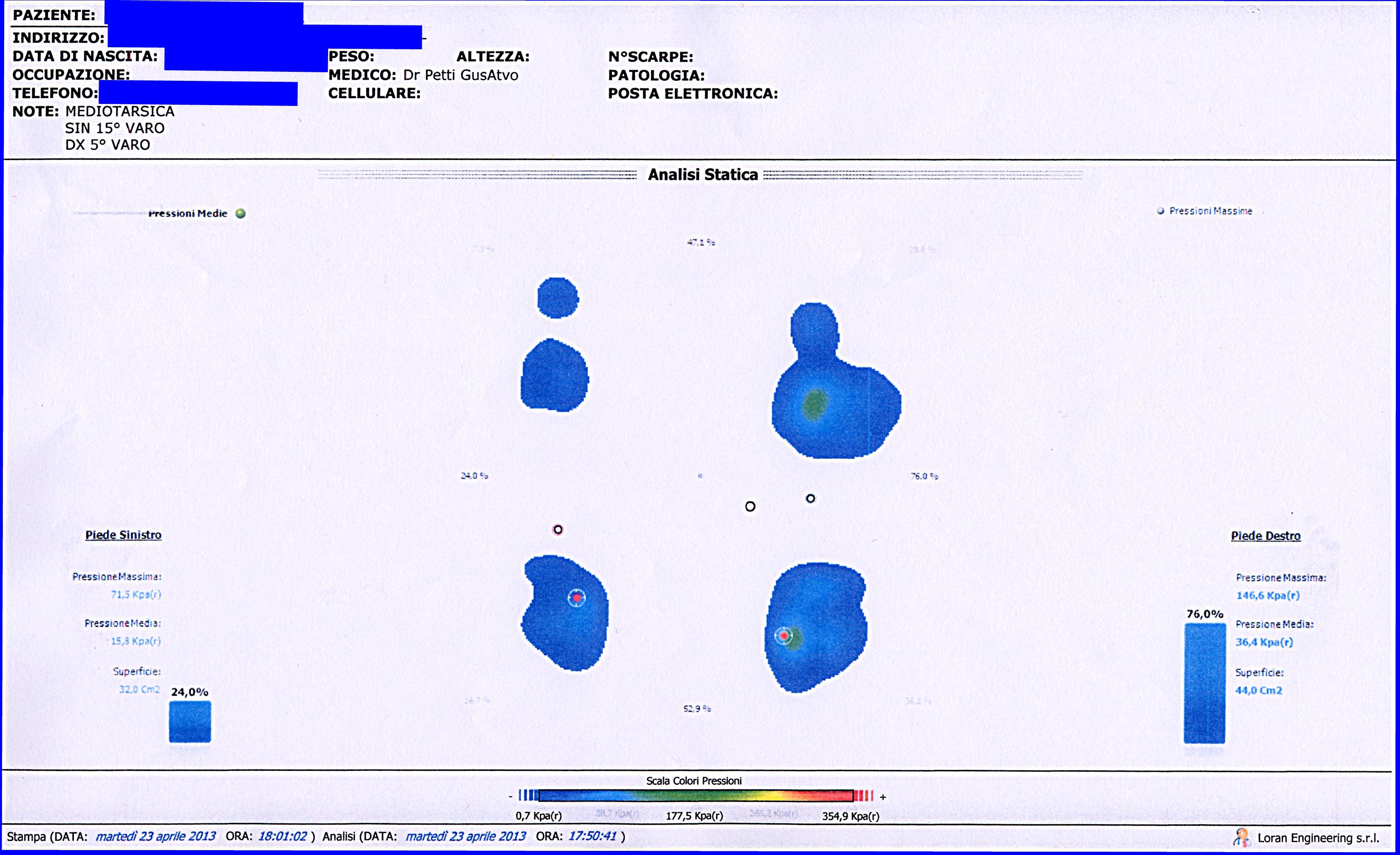 Analisi Stabilometrica della Postura. Una fase compiuterizzata. Da casistica del Dr. Gustavo Petti Parodontologo Gnatologo di Cagliari