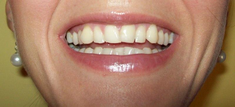 Affollamento dentale e Invisalign