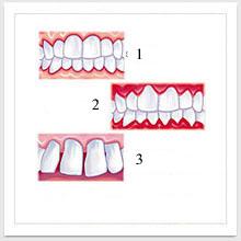 Piorrea (termine volgare di parodontite)