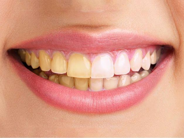 Salute dei denti, 5 nemici che la mettono a rischio