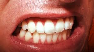 Denti, 8 sintomi per individuare il bruxismo