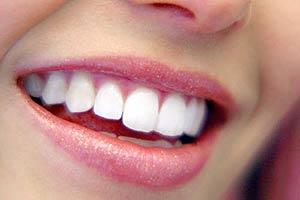 Parodontite 'ladra' dei denti: tour prevenzione in 50 città